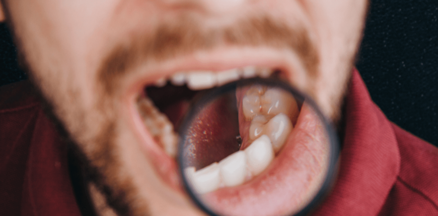 oral cancer symptoms causes treatment in India