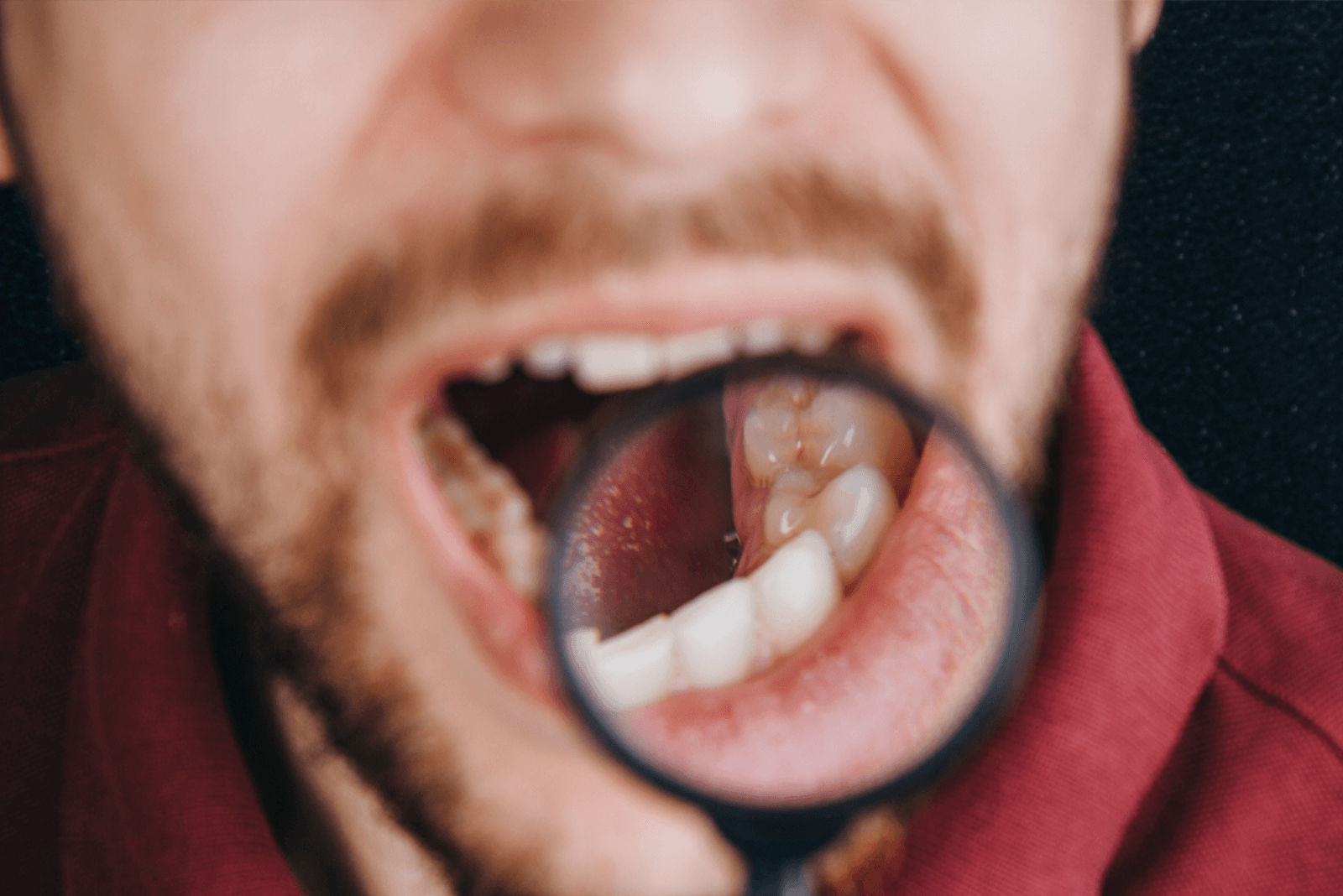 Oral Cancer: Symptoms, Causes, Treatment in India, and More