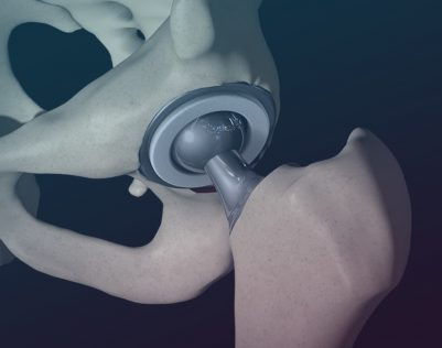 hip replacement surgery in india procedure