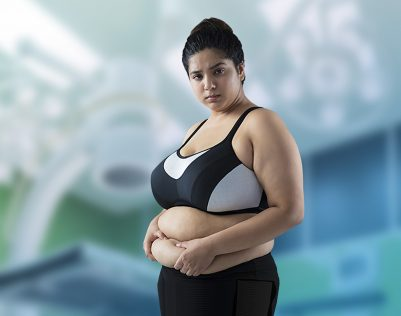 liposuction in India treatment cost