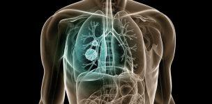 lung-cancer-treatment-delhi
