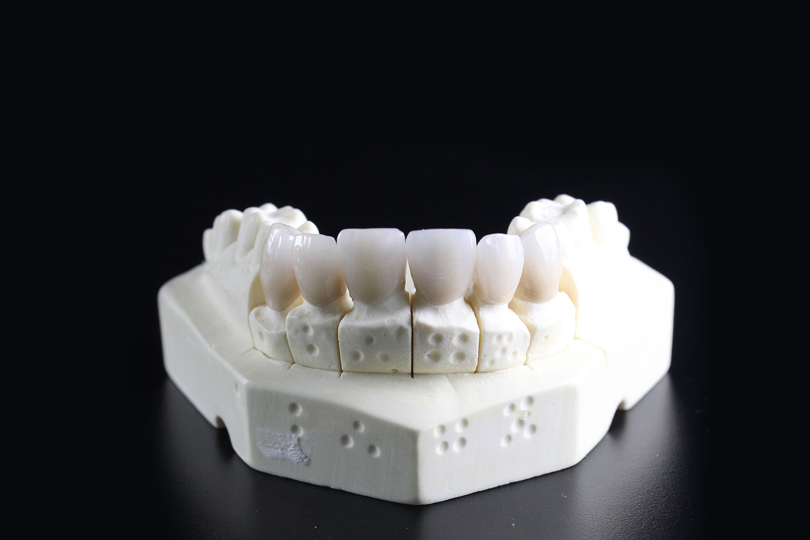 Dental Implant: Treatment in India, Cost, Recovery, and More