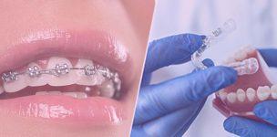 dental-braces-treatment