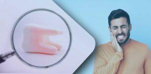 dental-veneers-in-india