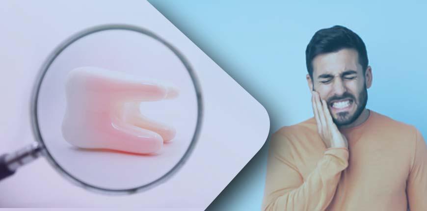 Dental Veneers: Cost, Results, And More