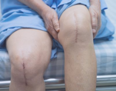 knee-replacement-surgery-india