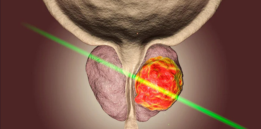Focal Therapy Cost in India in 2021