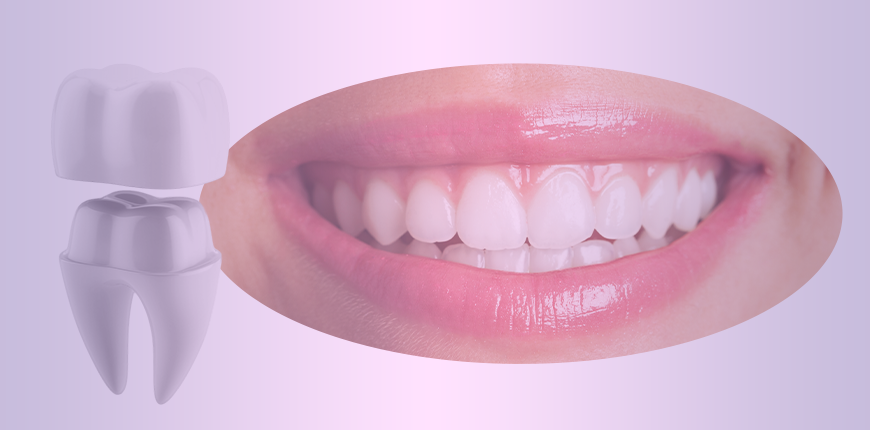 Learn All About Dental Crown Before Getting One