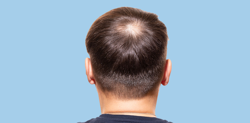 Best FUE Hair Transplant in India