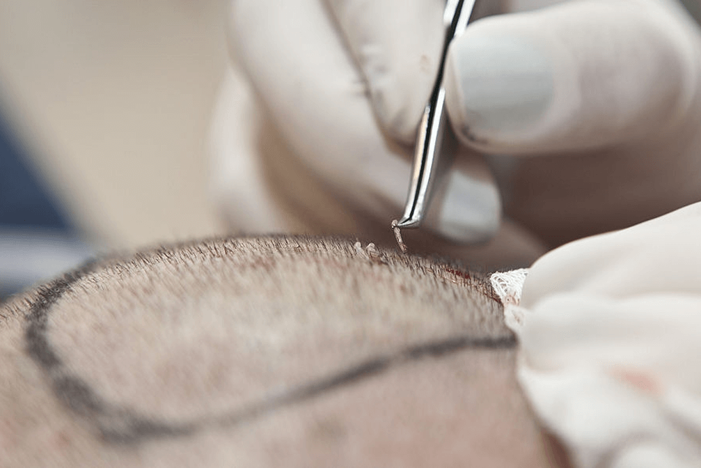 best Hair Transplant (FUE and FUT) in india