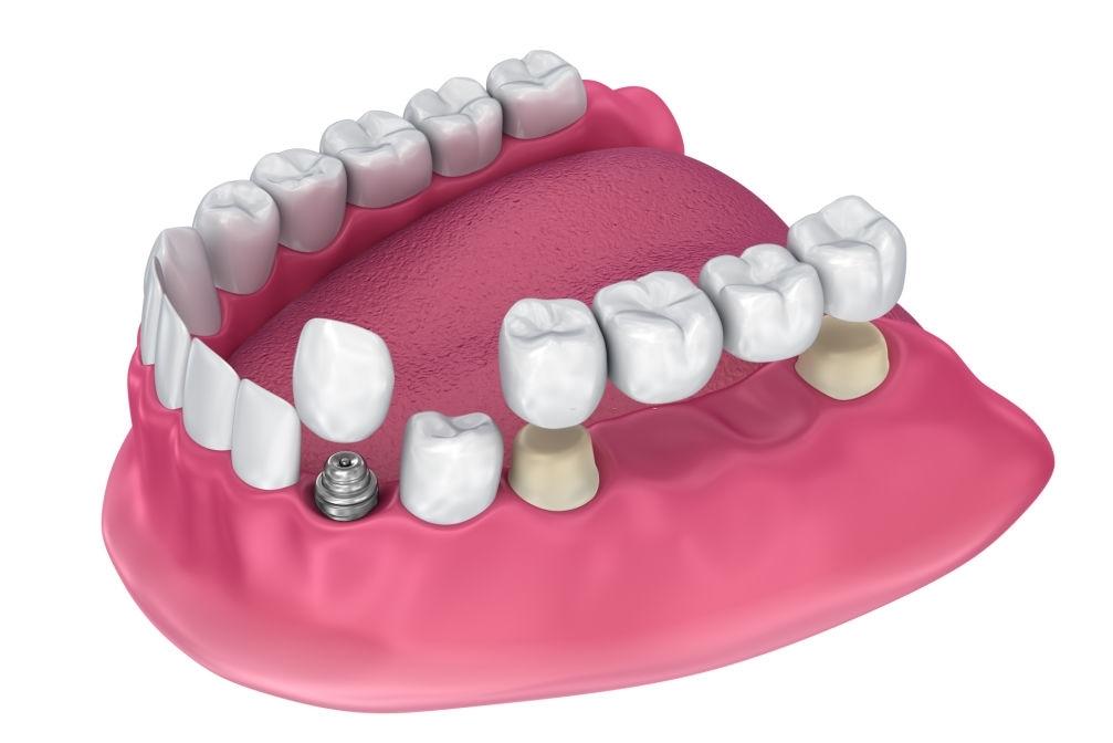 best Dental Implant in india