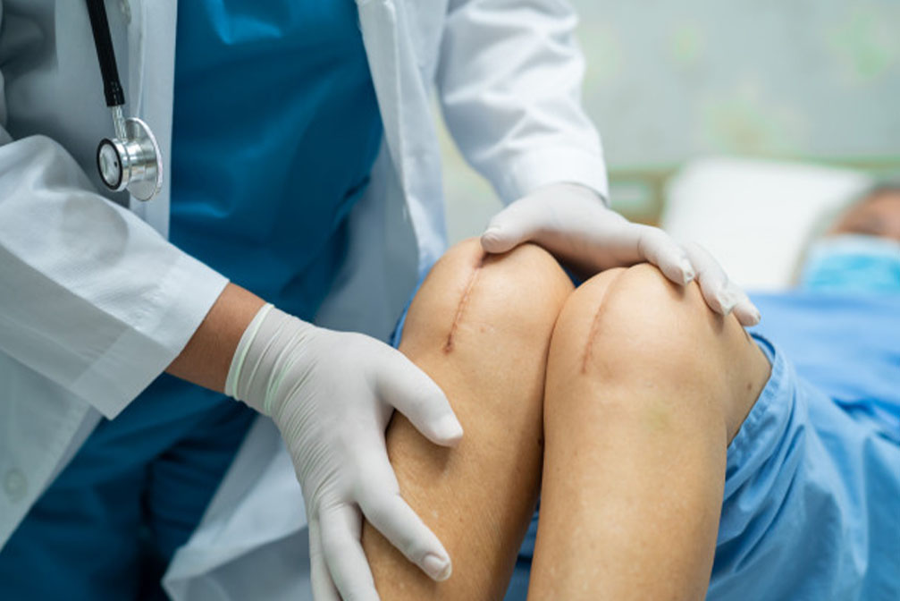 best Knee Replacement in india
